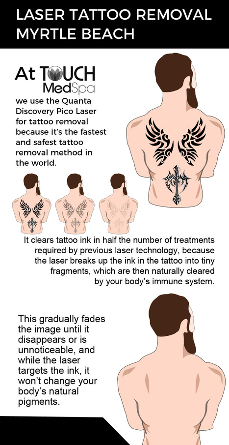 Visit-Touch-MedSpa-for-Fast-and-Safe-Laser-Tattoo-Removal-Servicesd63b212354fcbf15.jpg