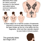 Visit-Touch-MedSpa-for-Fast-and-Safe-Laser-Tattoo-Removal-Servicesd63b212354fcbf15.th.jpg